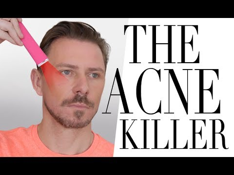 THE ACNE / BLEMISH KILLER TOOL!!!!
