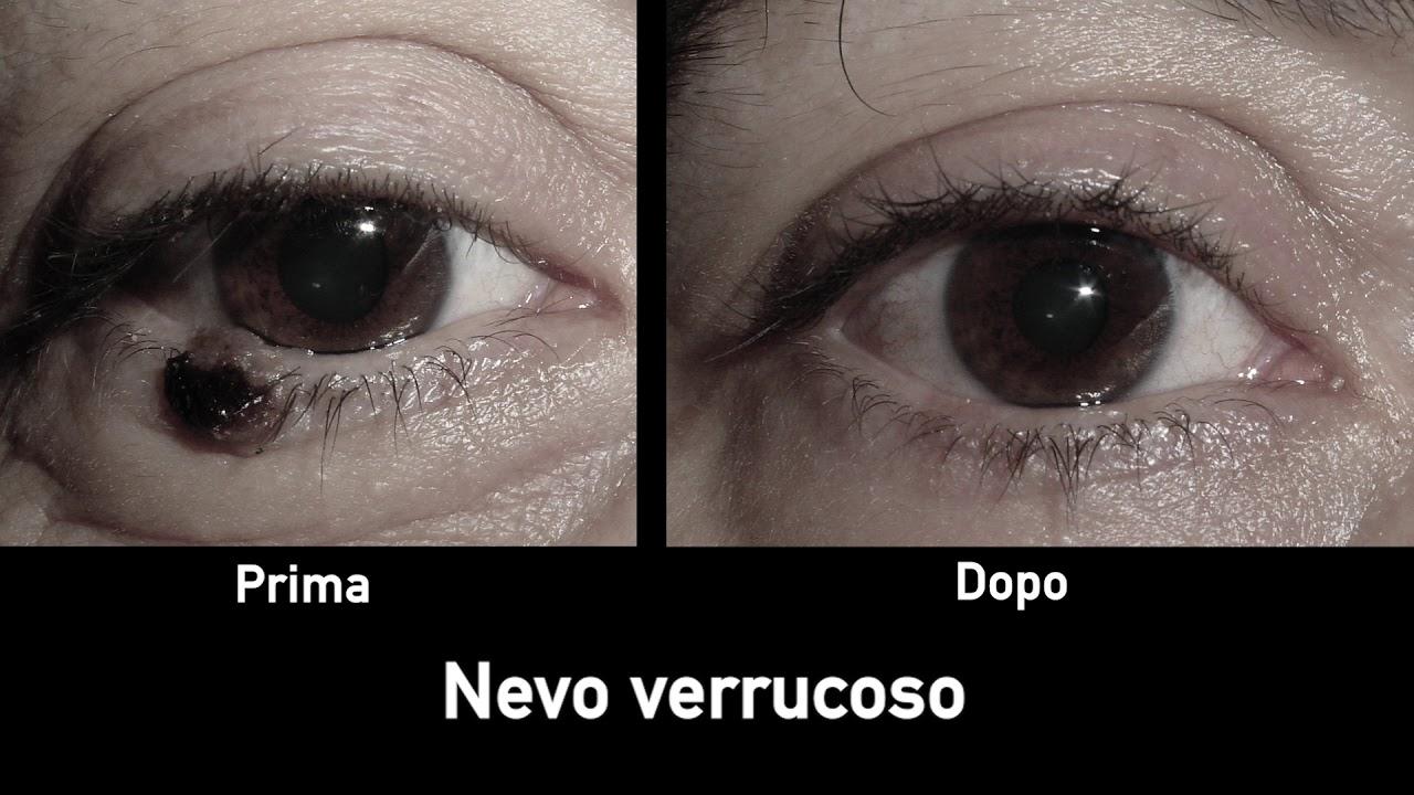 papilloma virus occhio