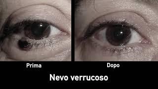 papilloma all occhio)