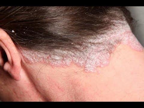 Scalp Fungus Natural Hair
