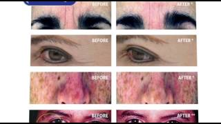 BioCell Collagen - Nature's Premier Collagen and Hyaluronic Acid Long Form Video