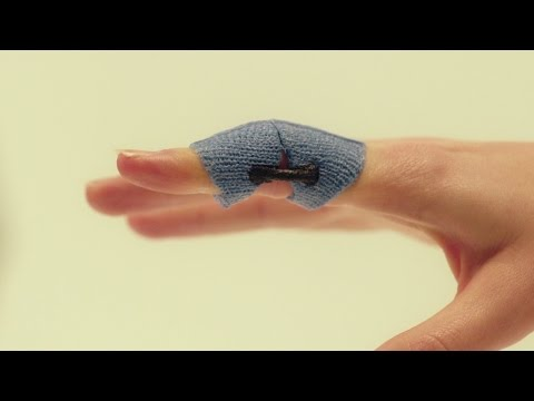 Hinged PIP joint extension blocking orthosis Orficast Instructional Movie 15
