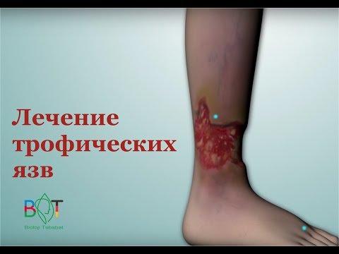 Трофические язвы на ногах: лечение, причины, симптомы, виды