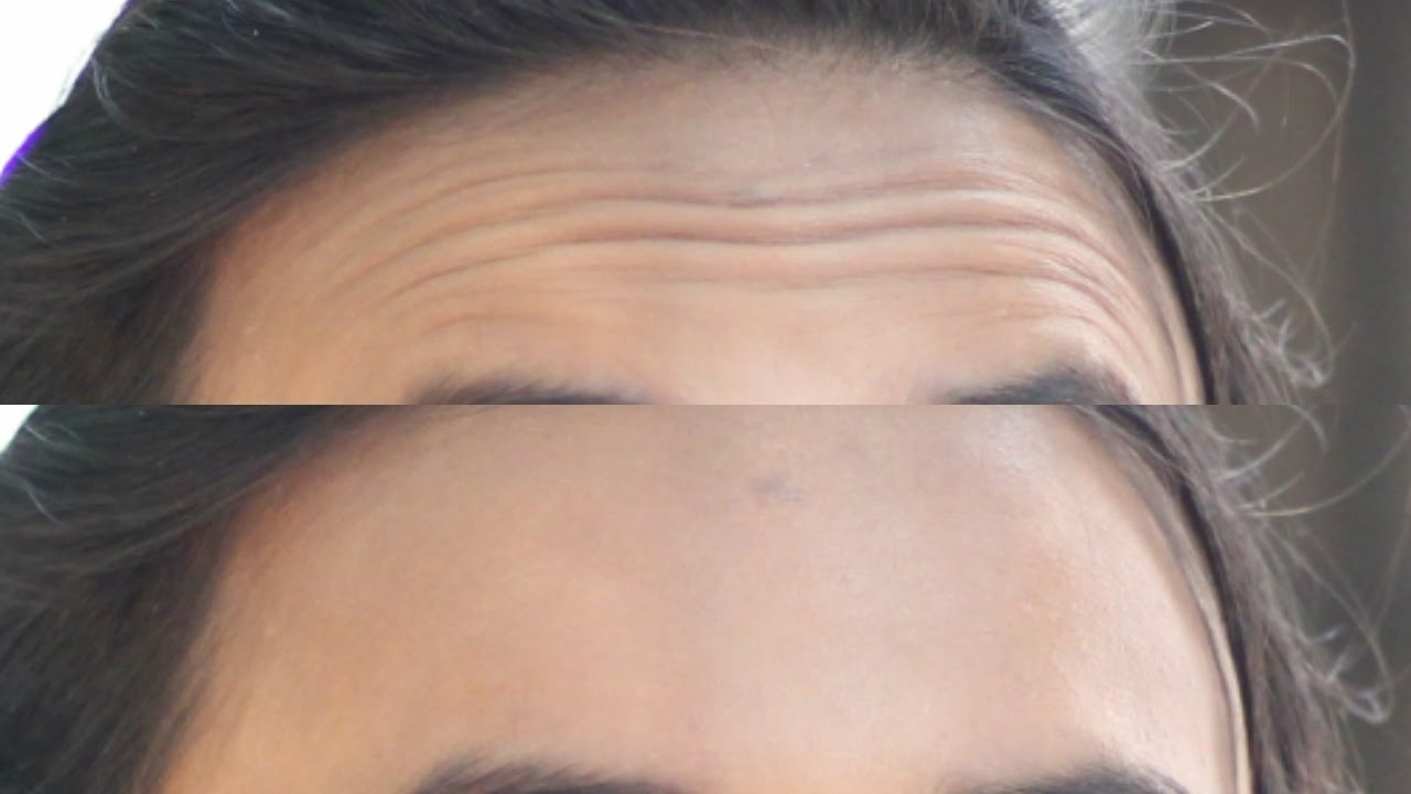 Remove Wrinkles From Face and Forehead