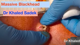 Massive Blackhead Removed. Dr Khaled Sadek. London Cyst Clinic