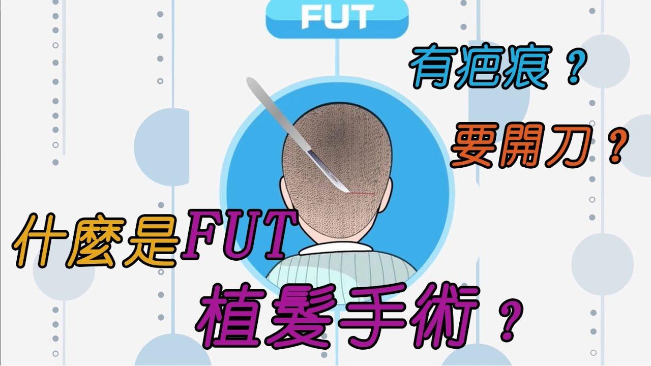 【雍禾植髮】什麼是FUT植髮手術? 具體是如何擦操作的呢?開刀嗎?有疤痕嗎? - YouTube