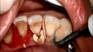 치석을 제거하는건지 이빨을 깨 부수는 건지