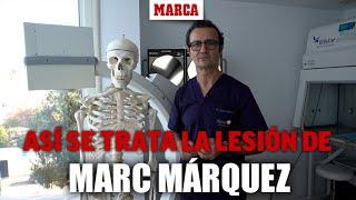 El doctor Ángel Villamor analiza la lesión de Marc Marquez y sus consecuencias I MARCA