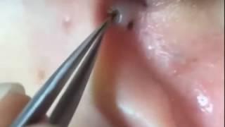 blackhead extraction on ear