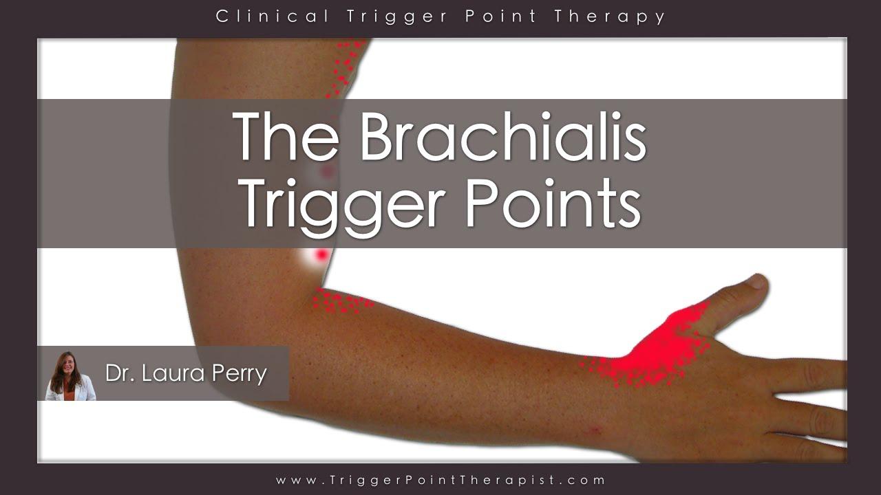 The Brachialis Trigger Points - YouTube