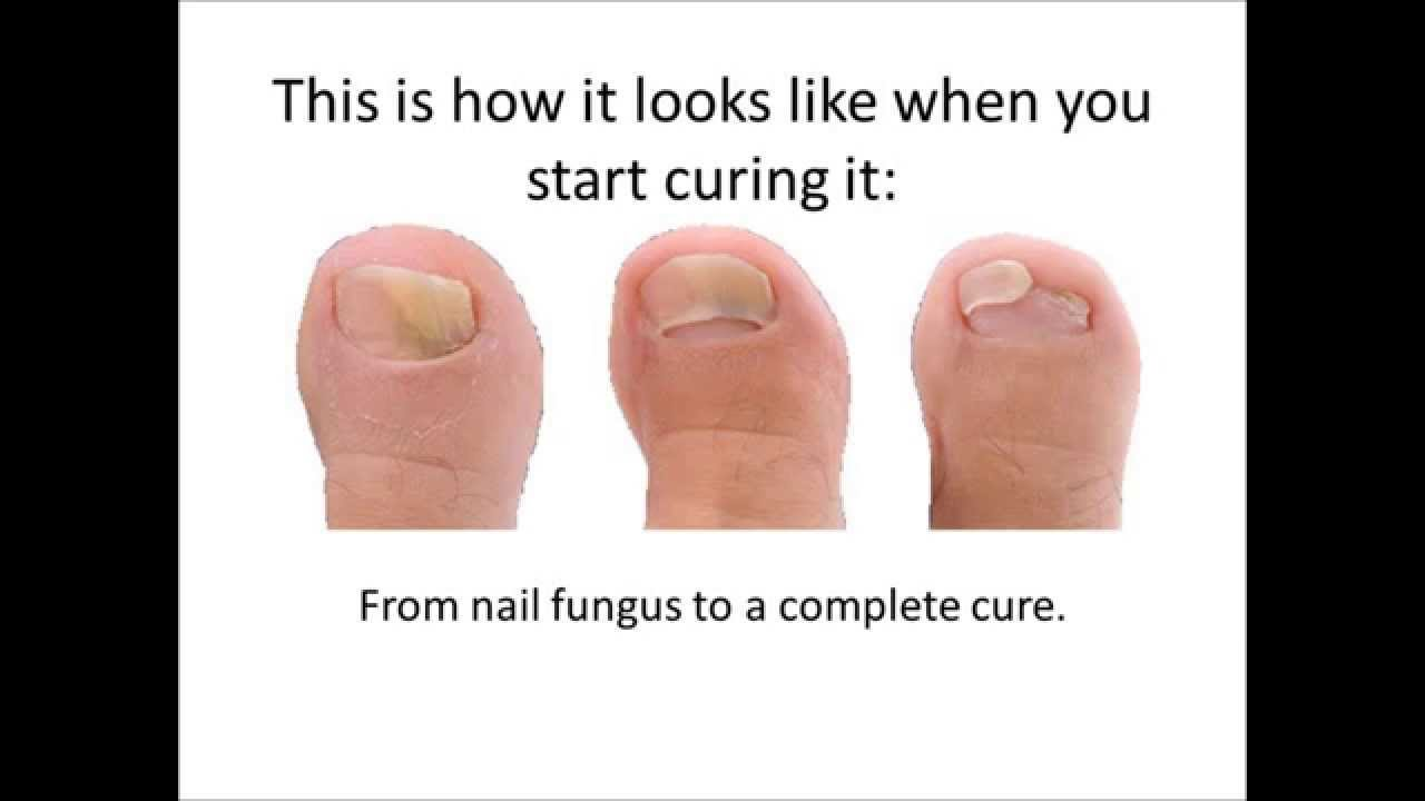 How to cure a fungus