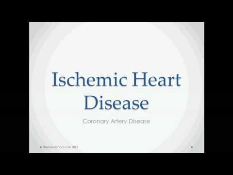 Ischemic Heart Disease - USMLE Step 2 Review