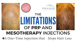Limitations, Ineffectiveness of PRP, Mesotherapy Hair Loss Treatments, and a Better Alternative