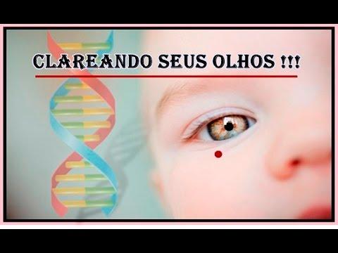 Despigmentador Da Iris Biokinesis Avancada P Olhos Youtube