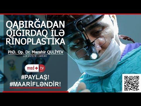 Qabirga Qigirdagiyla Rinoplastika Phd Op Dr Mezahir Quliyev Lor Estetik Cerrah Medplus T