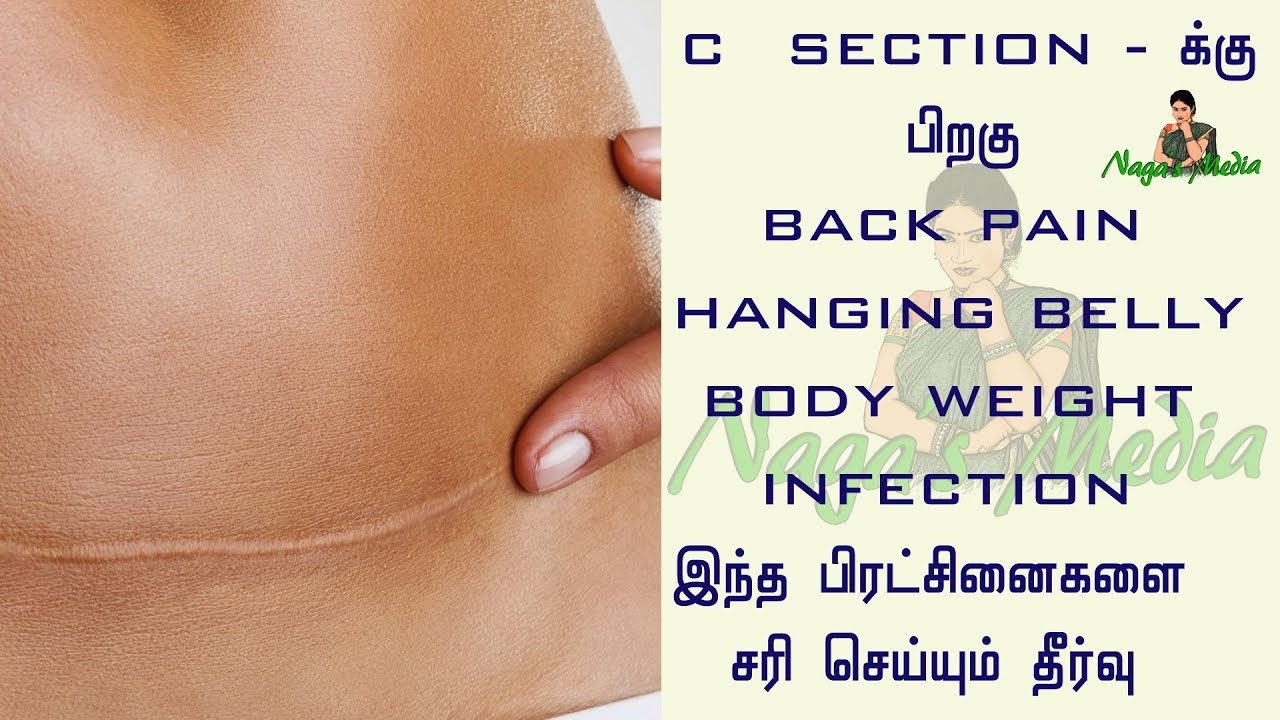 NAGAS MEDIA# How to recover after c section - How to cure ...