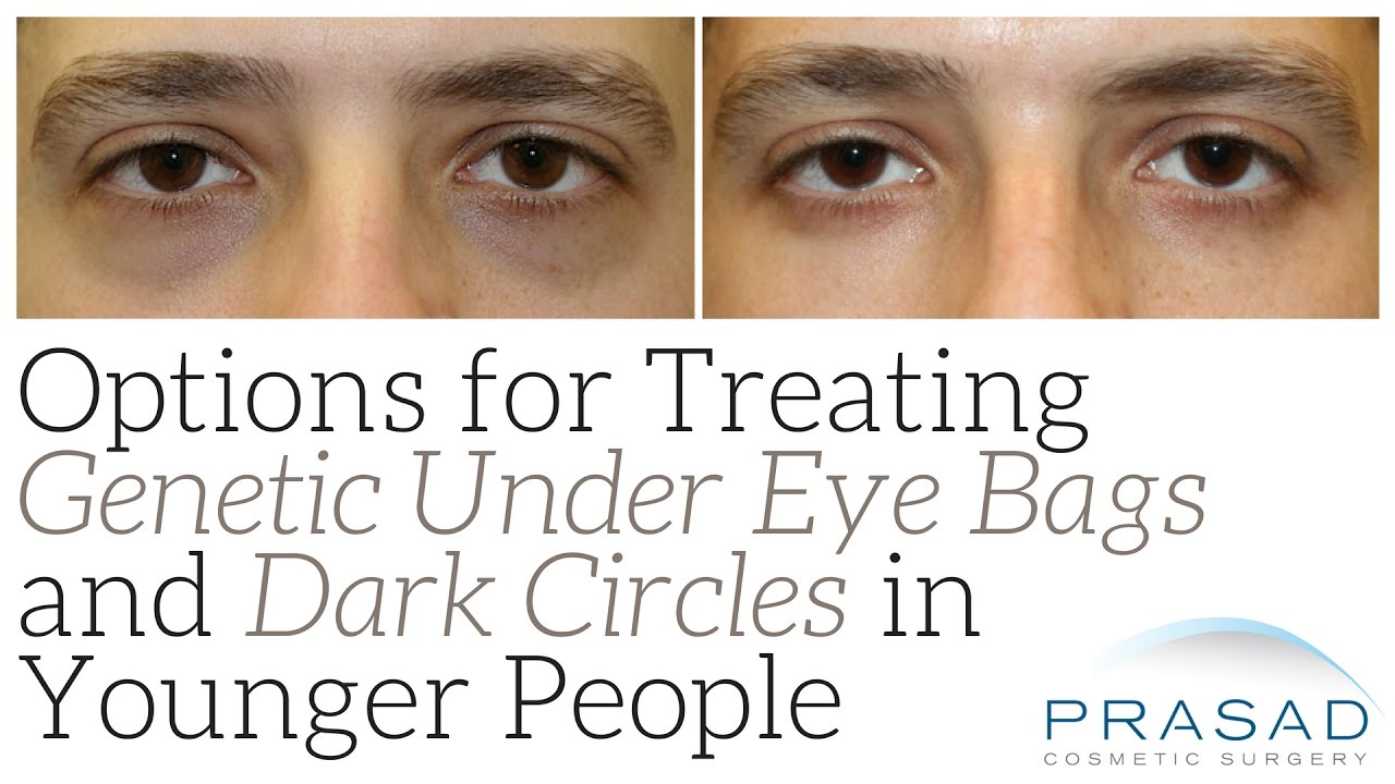 How Genetic Eye Bags and Dark Circles can be Treated in