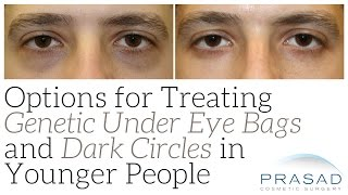 How Genetic Eye Bags and Dark Circles can be Treated in Younger People