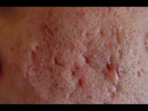 What Causes Acne Scars [DermTV.com Epi #563]