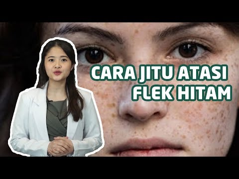 Part 1: http://www.youtube.com/watch?v=_tB3Hjfks3I Part 2: http://www.youtube.com/watch?v=WcMPgqnaeyc Dr Oz Indonesia....