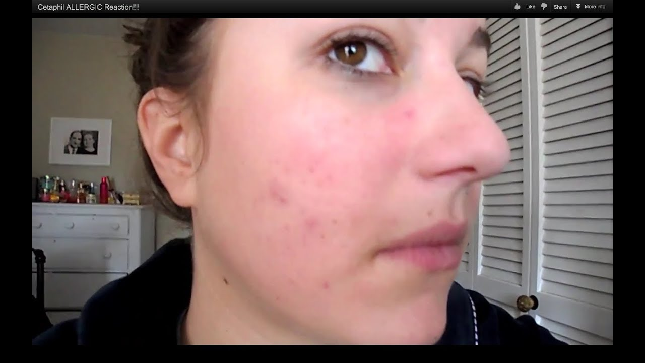Allergic Reaction Face Cream