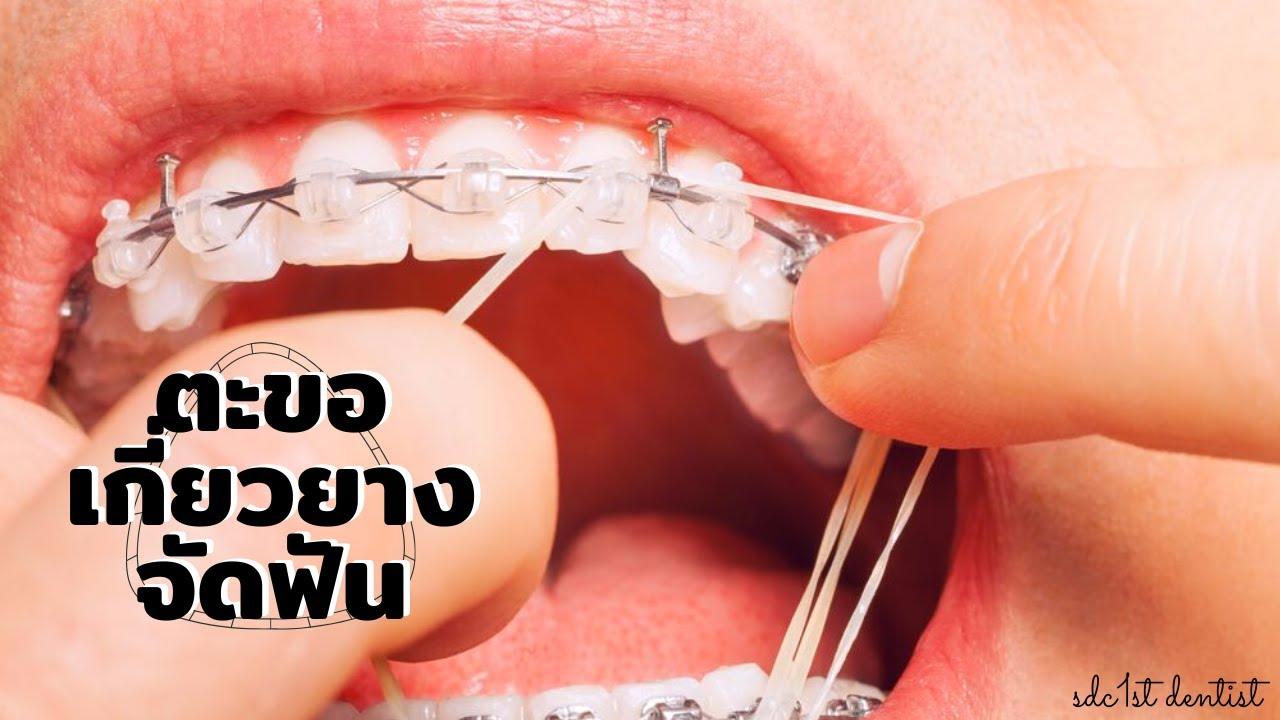 ตะขอ เกี่ยวยางจัดฟัน (Orthodontic hooks) ฮุค เป็นยังไงไปดูกัน!