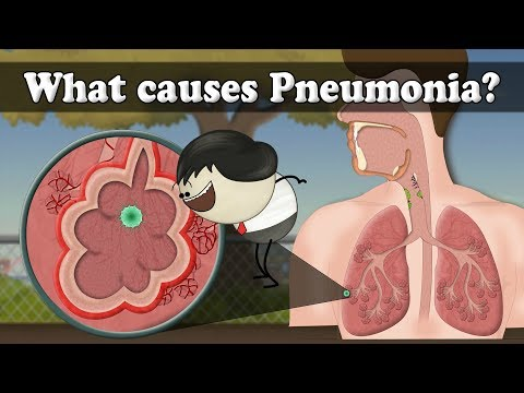 What causes Pneumonia?
