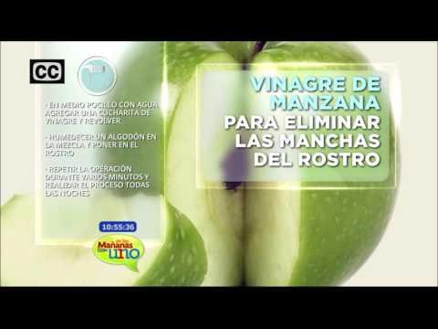 Vinagre de manzana para eliminar manchas en la piel
