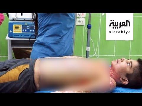 جديد طفل الفوسفور المحترق بالقصف التركي  - نشر قبل 42 دقيقة