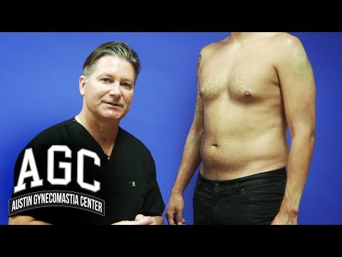 Abdominal Liposuction in Combination with Gynecomastia Treatment - Austin Gynecomastia Center
