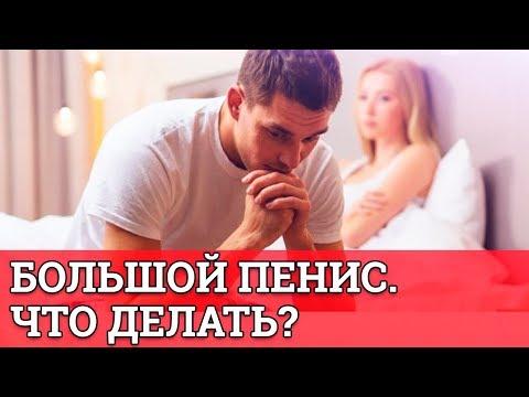 Большой пенис! Что то делать? || Юрий Прокопенко 18+