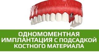 Двухэтапная имплантация. Восстановление передних зубов с подсадкой костной ткани(Достаточно часто у людей разрушаются передние зубы. Это может происходить по ряду причин, таких как вредные..., 2015-06-22T17:47:23.000Z)