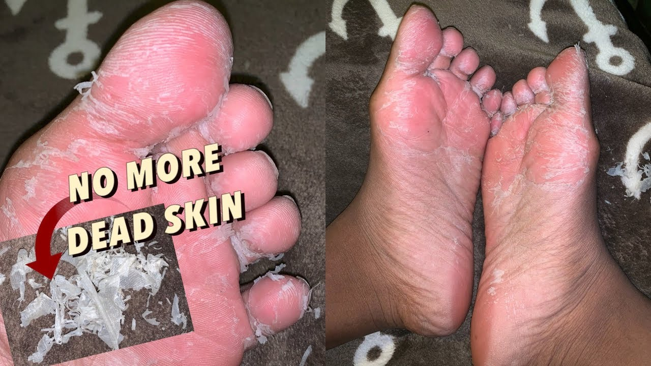 scrub dead skin off feet