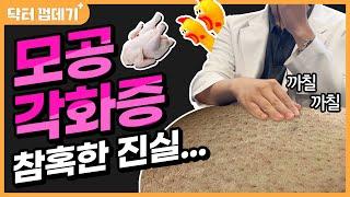 모공각화증, 닭살피부호갱방지법 (모공각화증, 닭살피부 …