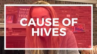 FINALLY Found Out The Cause Of My Hives! You Won't Believe It