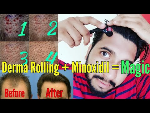 Derma Rolling For Hair Regrowth | Minoxidil | How To Use