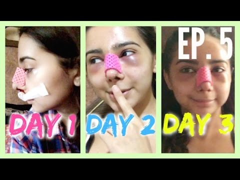 Rhinoplasty at 16 Vlog: DAY 1, 2, & 3 AFTER SURGERY! Episode 5