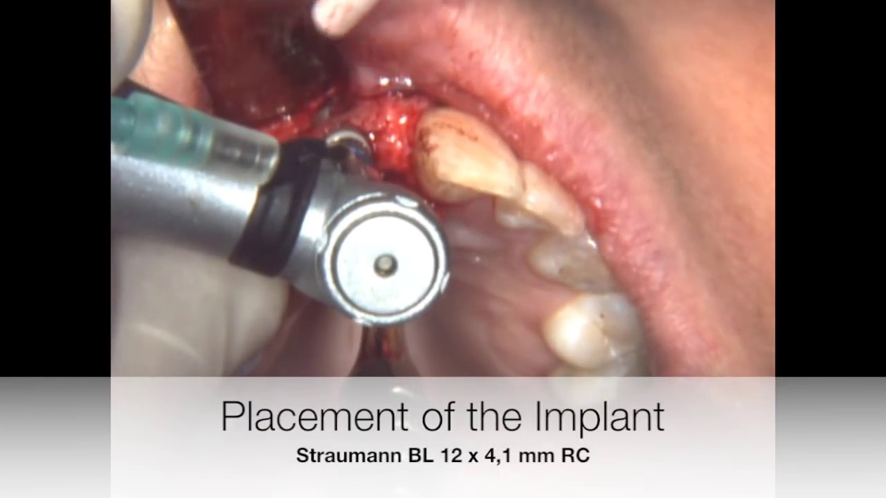 Implant placement in the incisive canal - YouTube