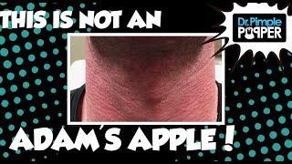 This is not an Adam's Apple...