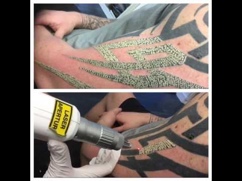 Tribal tattoo removal - YouTube