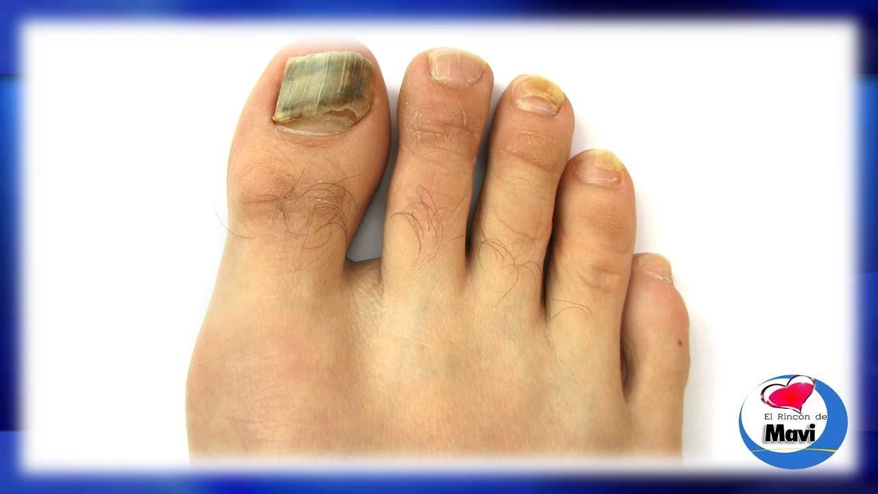 Remedios caseros para hongos en las u as de los pies y - Como mantener los pies calentitos ...