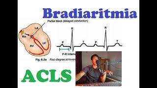Gangguan irama jantung adalah kelainan denyut jantung yang terjadi akibat adanya perubahan impul lis.