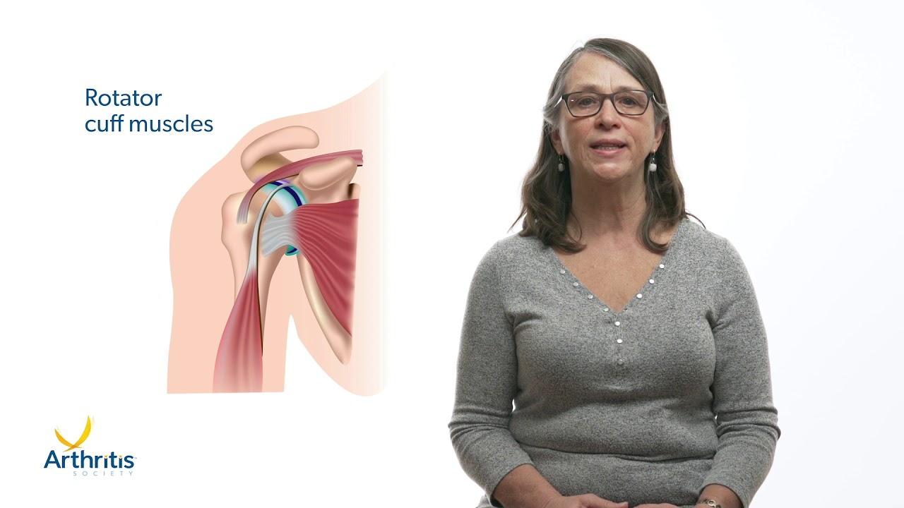 Latin vállízület osteoarthritis