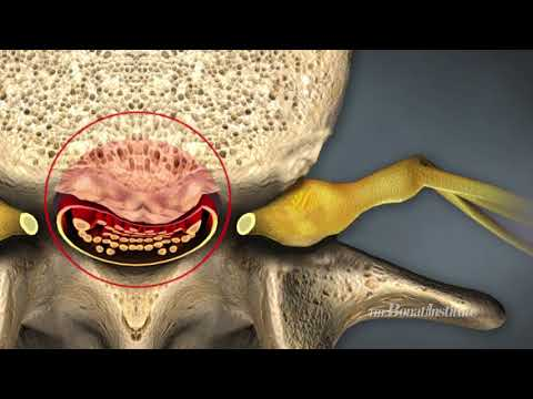 Spinal Stenosis, Causes and Treatment