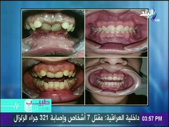 اسباب اعوجاج الأسنان وكيفية علاجها مع الدكتور عمر يسري Youtube