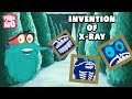 Invention Of X-Ray | The Dr. Binocs Show | Best Learning Video for Kids | Preschool Learning