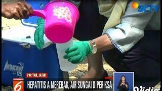 Bahan Alami untuk Sembuhkan Hepatitis A, Kunyit hingga Mahkota Dewa - iNews Siang 20/11.