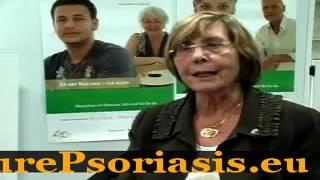 Can Vitamin D Help Psoriasis - Japan Psoriasis Treatment Thumbnail