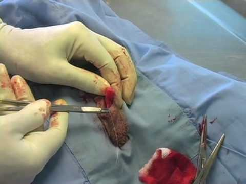 Scrotal Castration Large Dog With Hernia Repair Part 2 Of 2