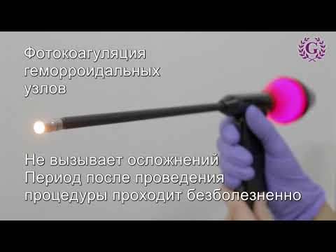 Проктология в Клинике Гиппократ ст. Ленинградская. Лечение геморроя за 30 минут.
